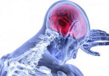 Excesul de calciu provoacă inflamație, dar există un mineral care poate reduce inflamația